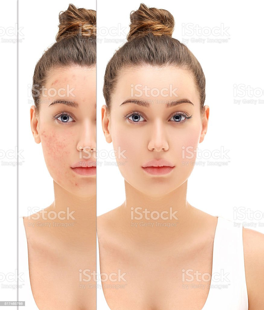 Post-Acne Marks stock photo