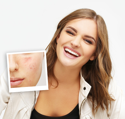 Post-Acne Marks ,Acne Scars