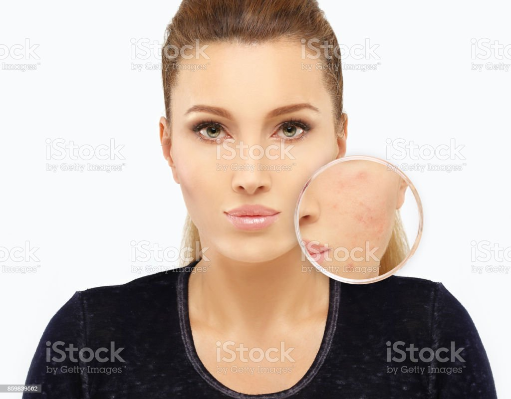 Post-Acne Marks,Acne Scars stock photo