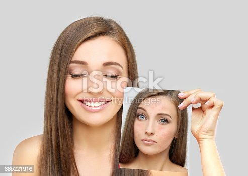 istock Post-Acne Marks,Portrait of beautiful girl  with problem and clear skin 665221916