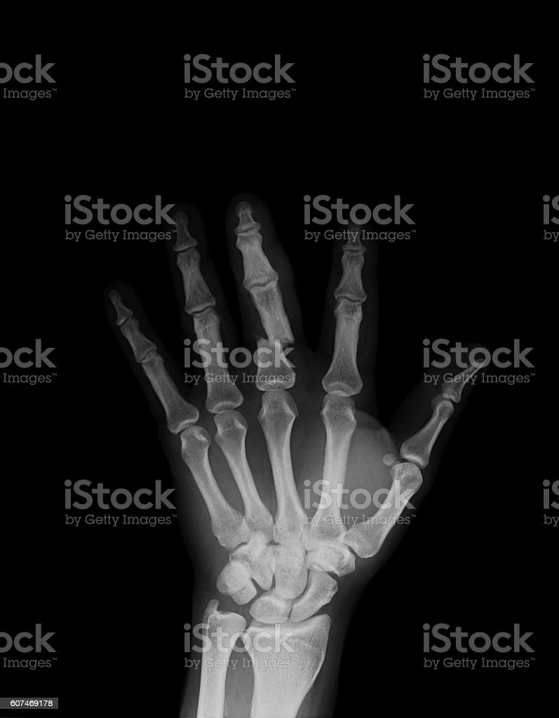 Posteroanterior Hand Xray Showing Proximal Of Middle Finger Fracture ...