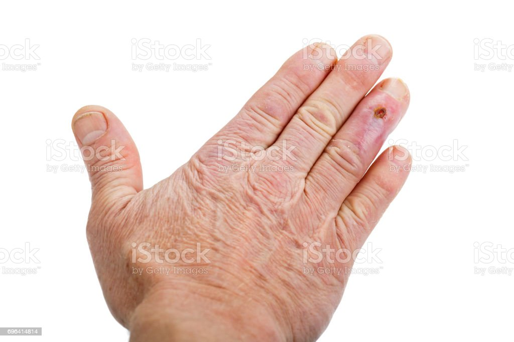 Postoperative scar on the fourth finger stock photo