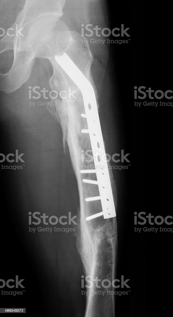 Postoperative X-ray of femur fracture, AP view. stock photo
