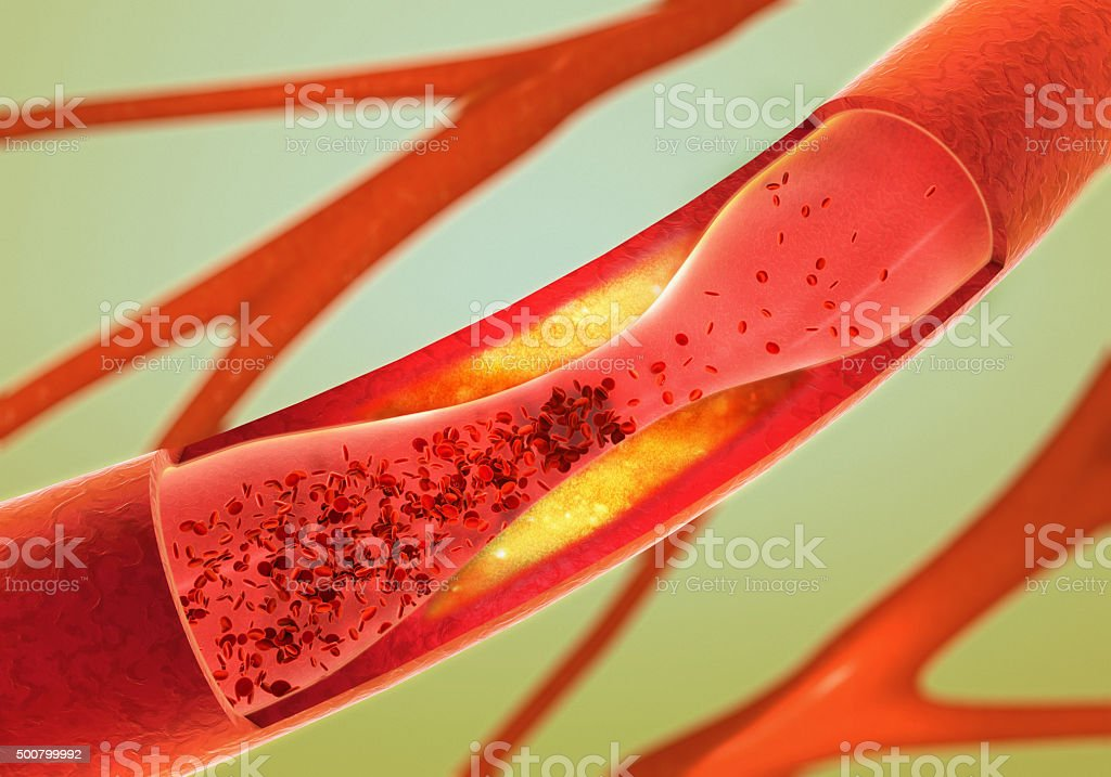 precipitate and narrowing of the blood vessels - arteriosclerosis stock photo