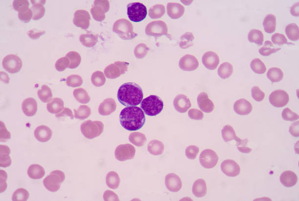 Precursor cell on blood smear. stock photo
