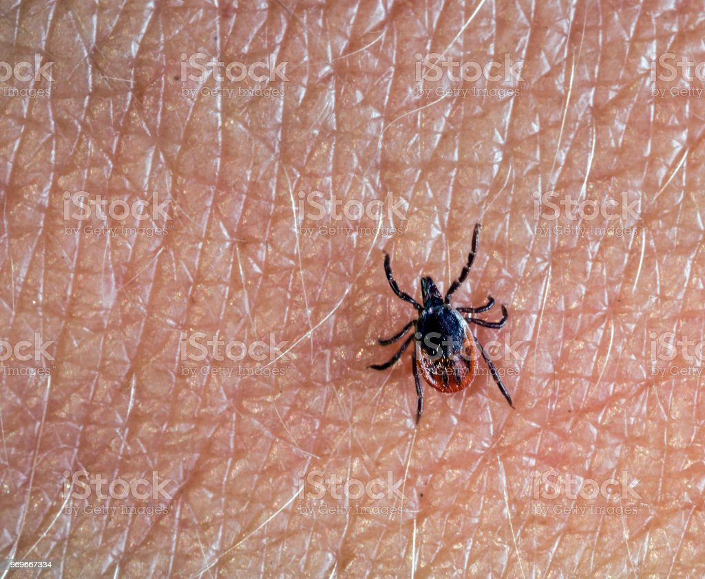 A predatory tick crawls along the human body stock photo