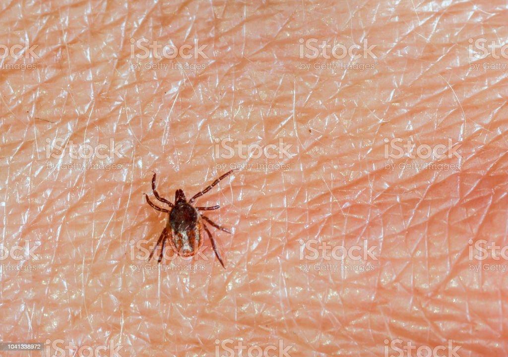A predatory tick crawls along the human skin. Closeup, top view stock photo