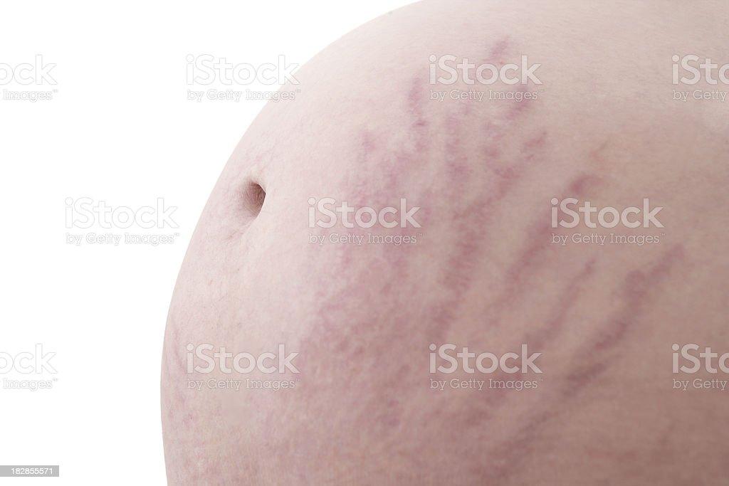 Pregnancy Stretch Marks stock photo