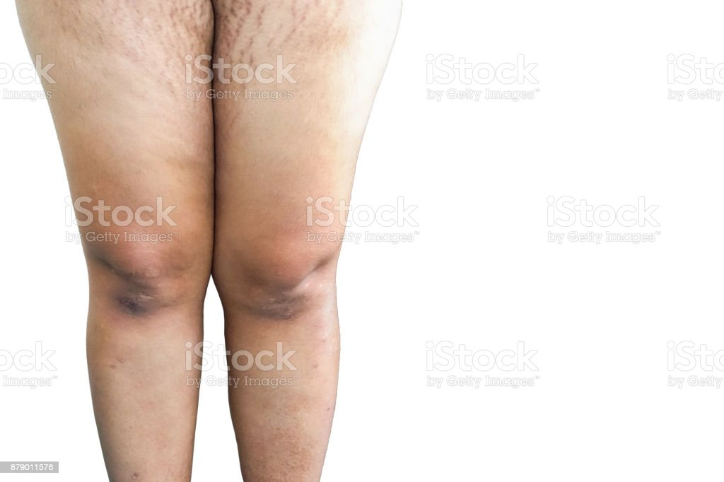 Pregnant woman with cracks stock photo