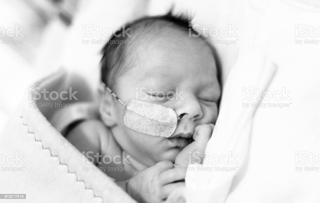 Baby boy in an incubator with a feeding tube in his nose.