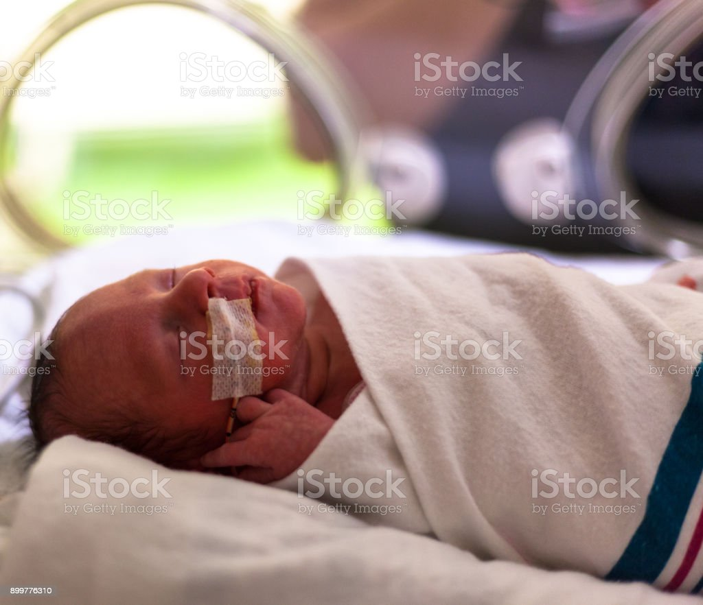 Baby boy 32 weeks and 5 days old in an incubator with a feeding tube...
