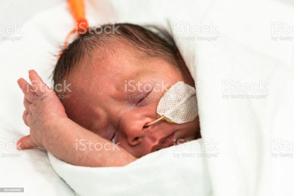 Baby boy 34 weeks and 2 days old in an incubator with a feeding tube...