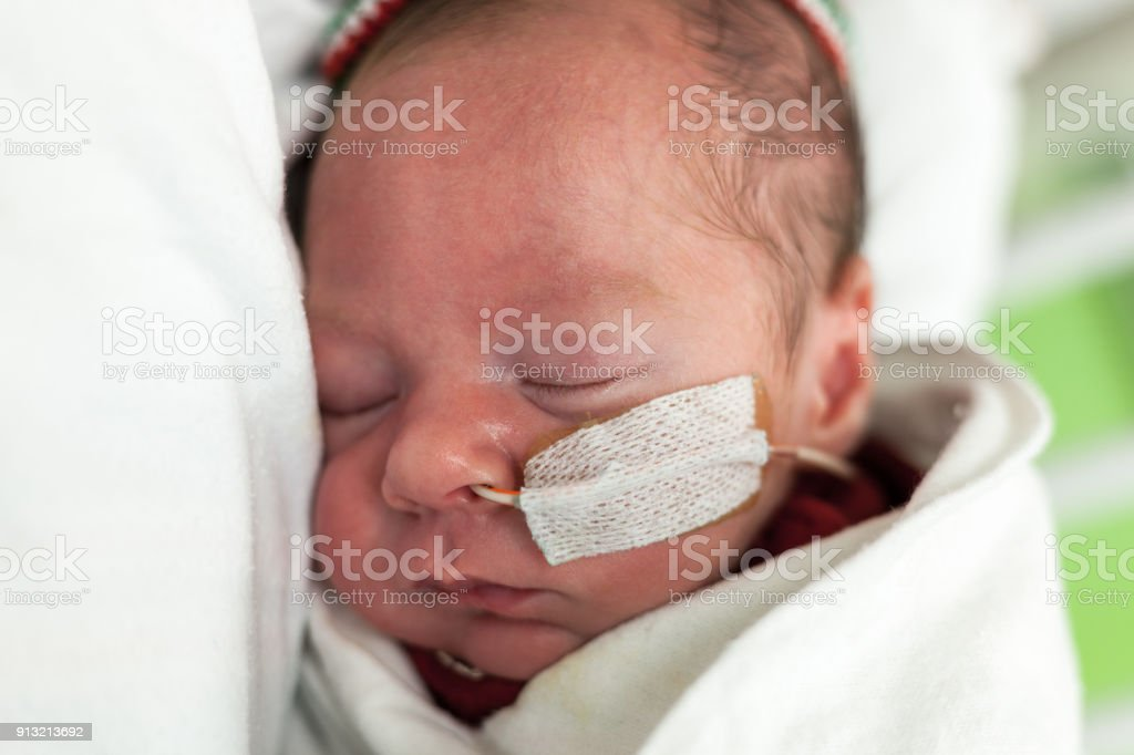 Baby boy 35 weeks and 1 day old in an incubator with a feeding tube...