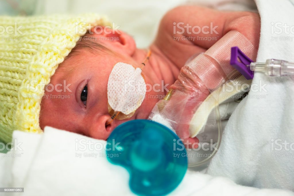 Baby boy 33 weeks and 5 days old with a feeding tube through his nose...
