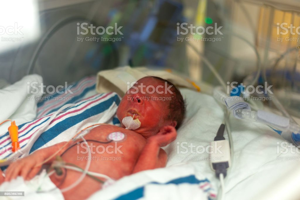Premature baby boy in an incubator with a feeding tube.