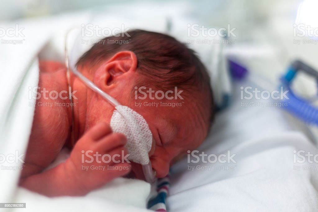Premature baby boy in an incubator wearing a hi flow breathing...
