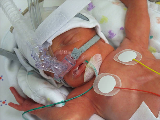 Frühgeburt in ICU – Foto