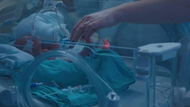 Vorzeitiges Neugeborenes im Inkubator mit ultraviolettem Licht – Foto