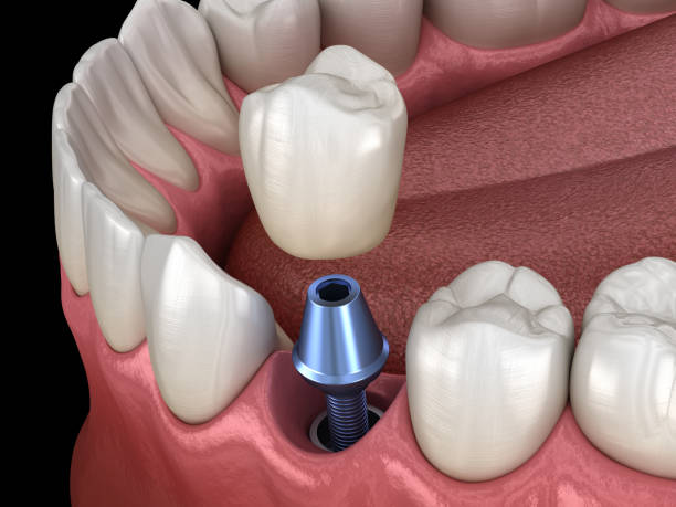 prämolaren zahn krone installation über implantat-abutment. medizinisch genaue 3d abbildung des menschlichen zähnen und zahnersatz-konzepts - zahnimplantat stock-fotos und bilder