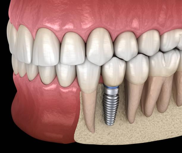 wiederherstellung der prämolaren zahn mit implantat. medizinisch genaue 3d abbildung des menschlichen zähnen und zahnersatz-konzepts - zahnimplantat stock-fotos und bilder