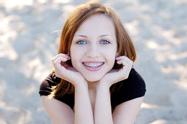 Linda garota usando odontológicos sorrindo alegremente - foto de acervo