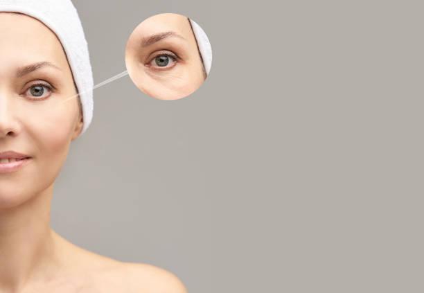 ganska mogen flicka. före och efter porträtt. anti wrincle hälsosam terapi. svart cirkel under ögonen. kollagengrädde. kosmetologi föryngring. skönhet modell. förfaranderesultat - filler swollen bildbanksfoton och bilder