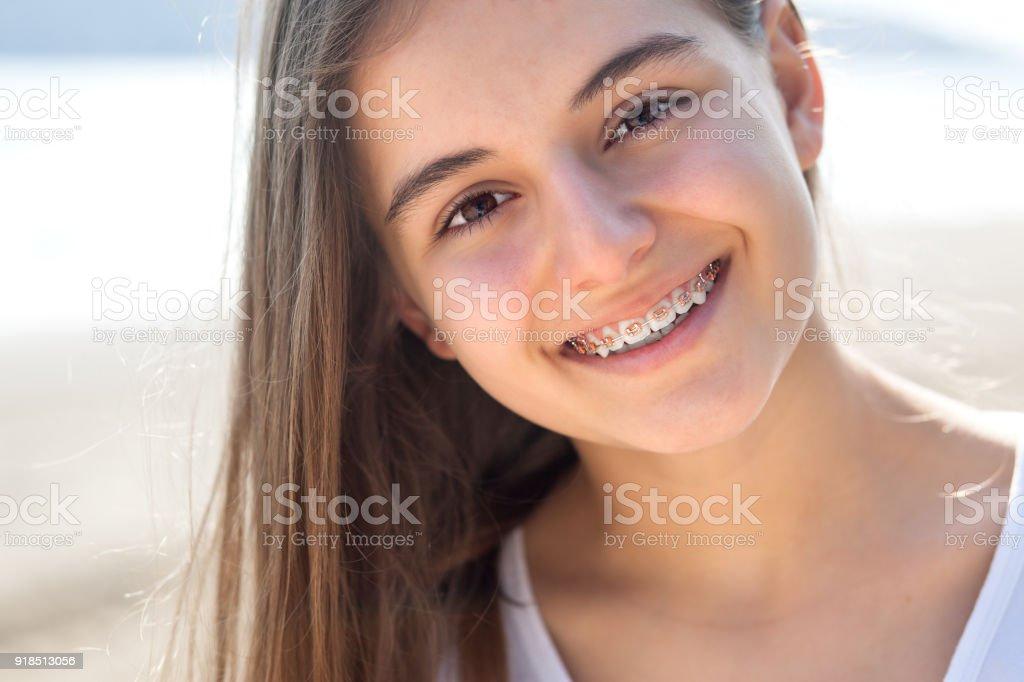 Ziemlich junges Mädchen tragen Zahnspangen fröhlich lächelnd – Foto