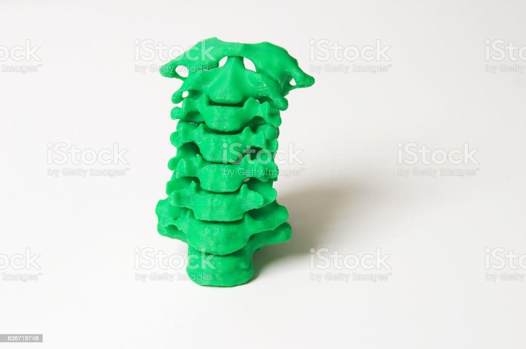 3D Print of vertebrae against white background stock photo