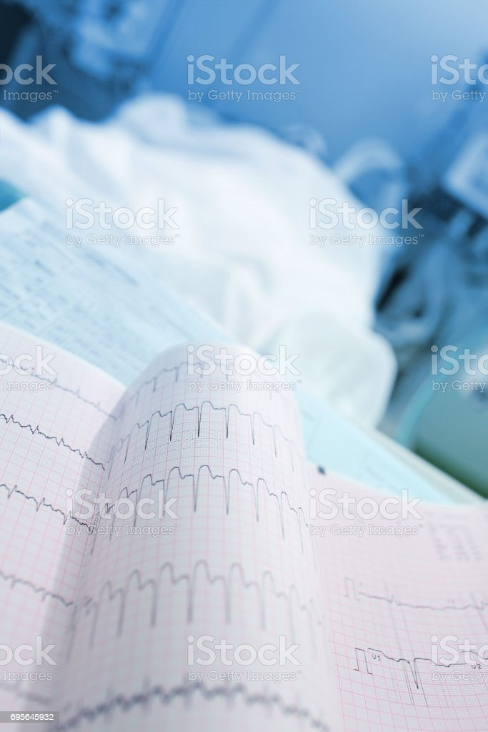 ECG printout near of patients bed stock photo