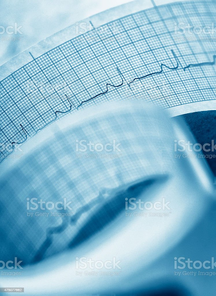 Printout of heart pulse trace. stock photo