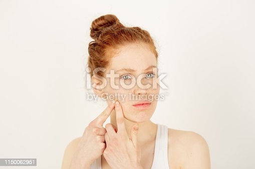 Teenage girl touching her cheek while expressing displeasure with acne or pimples on her face