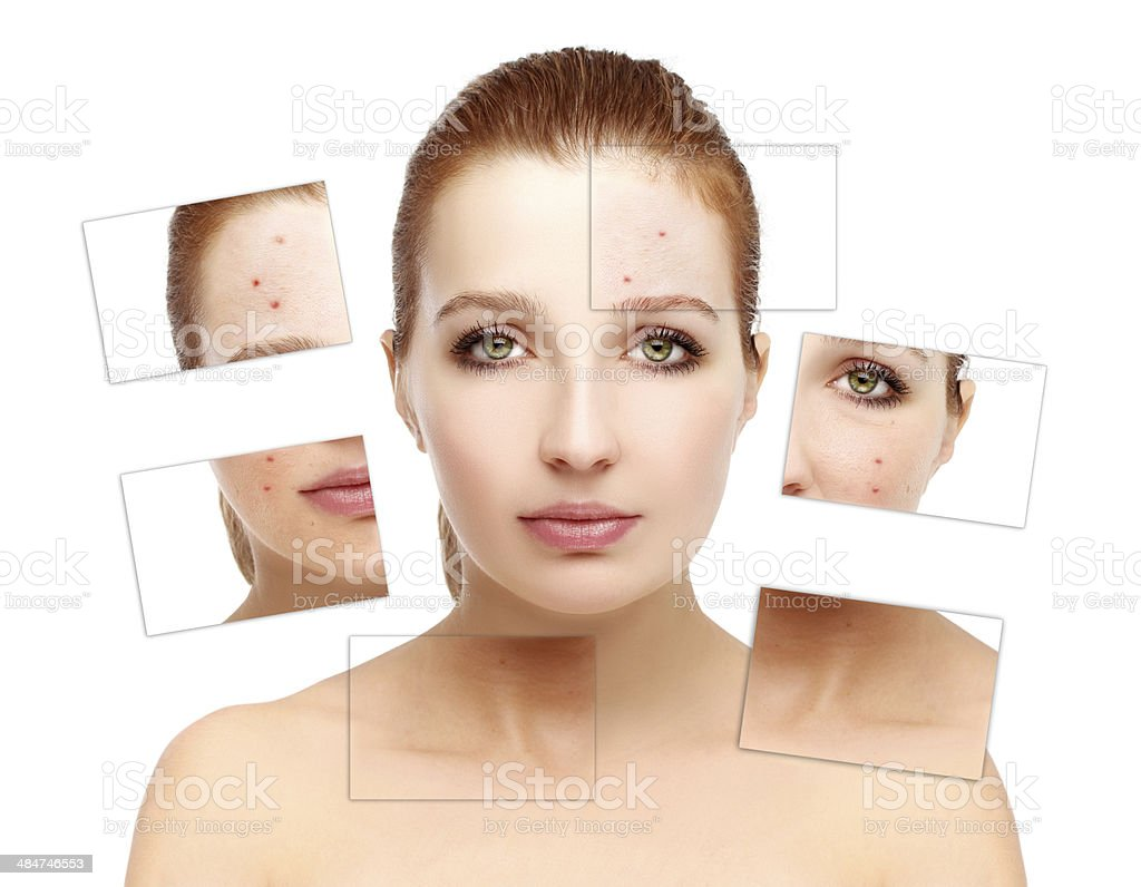 Problem skin, acne - Royalty-free Acne Stock Photo