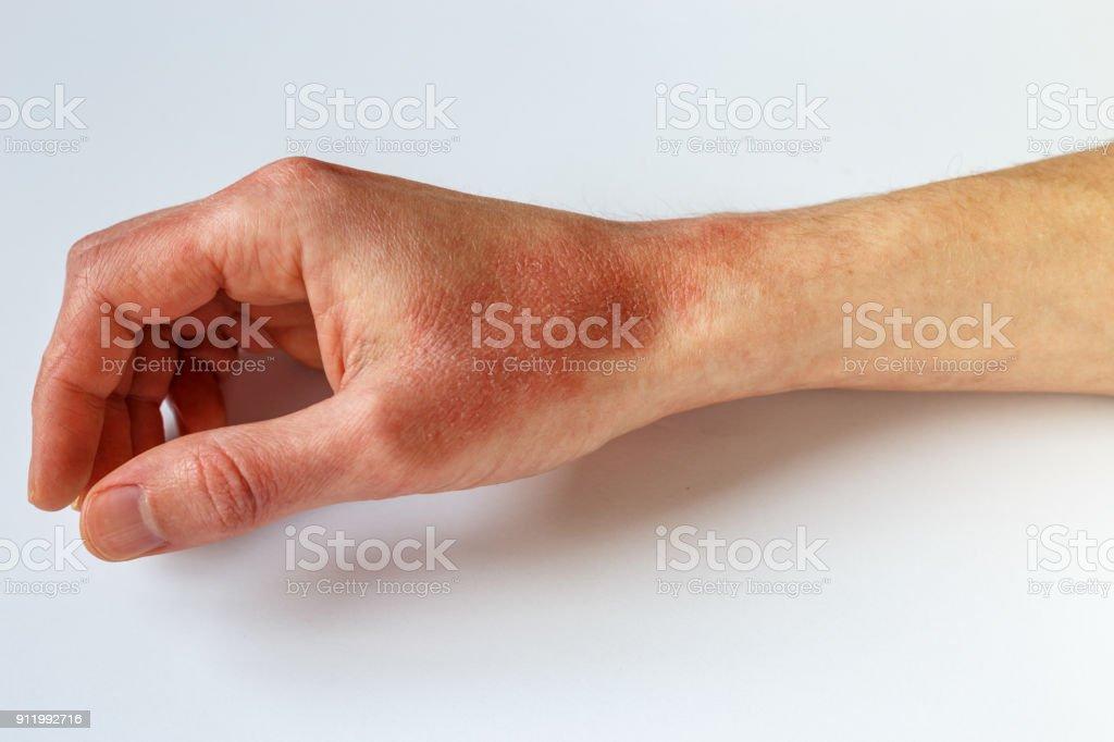 manchas rojas en las manos coronavirus