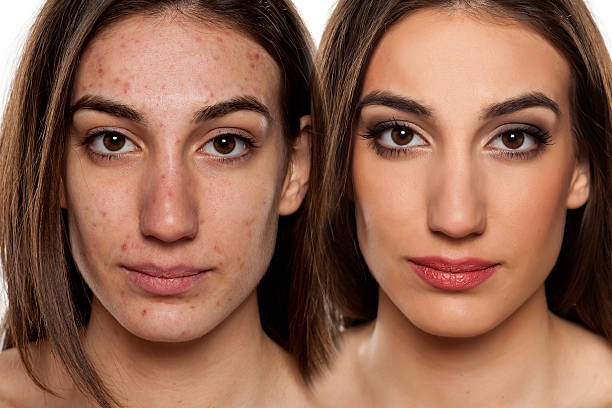 problematic skin before and after makeup - retouched image stock photos and pictures