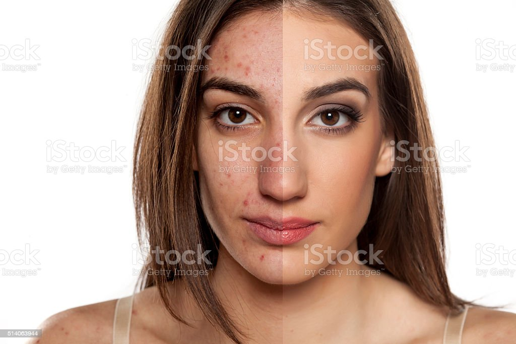 problematic skin before and after makeup​​​ foto