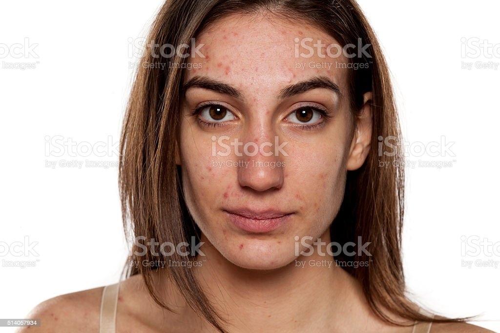 problematic skin stock photo