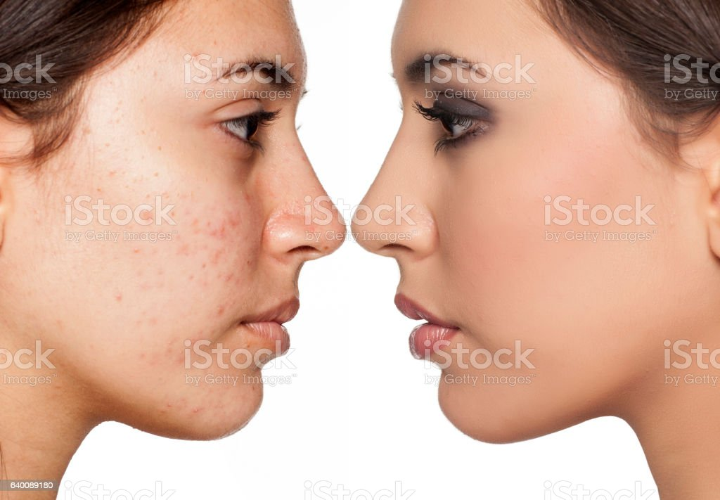 problematic skin without and with makeup stock photo