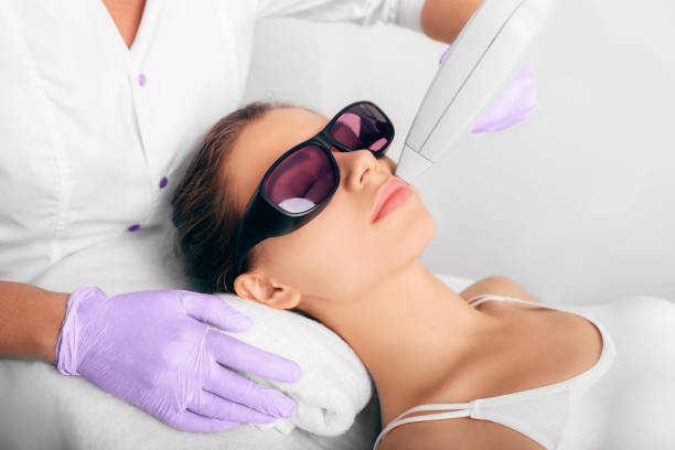 Procedure laser epilation for removing hair on face woman getting hair laser epilation, removing hair on face facial hair stock pictures, royalty-free photos & images