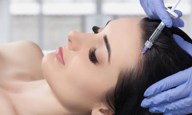 verfahren der mesotherapie. der arzt kosmetikerin macht das verfahren der mesotherapie in frauenkopf. - nadeldesigns stock-fotos und bilder