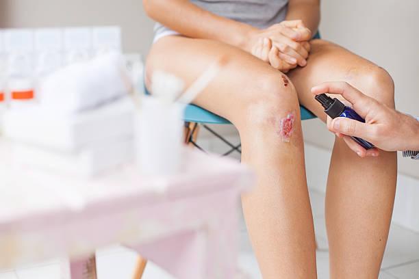 Procédure de traitement endommagé genoux - Photo