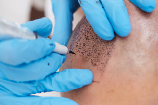 professional tattooist making permanent make up tricopigmentation stock photo