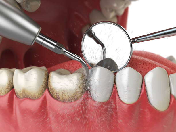 Professional teeth cleaning. Ultrasonic teeth cleaning machine delete dental calculus from human teeth. stock photo