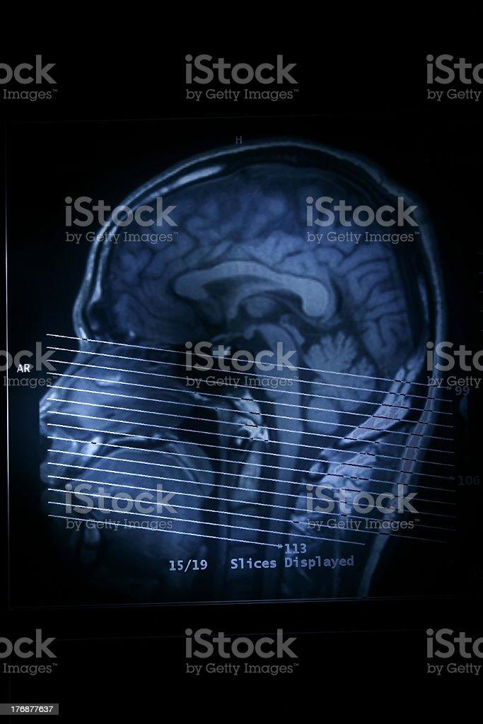 Profile MRI scan of human brain stock photo