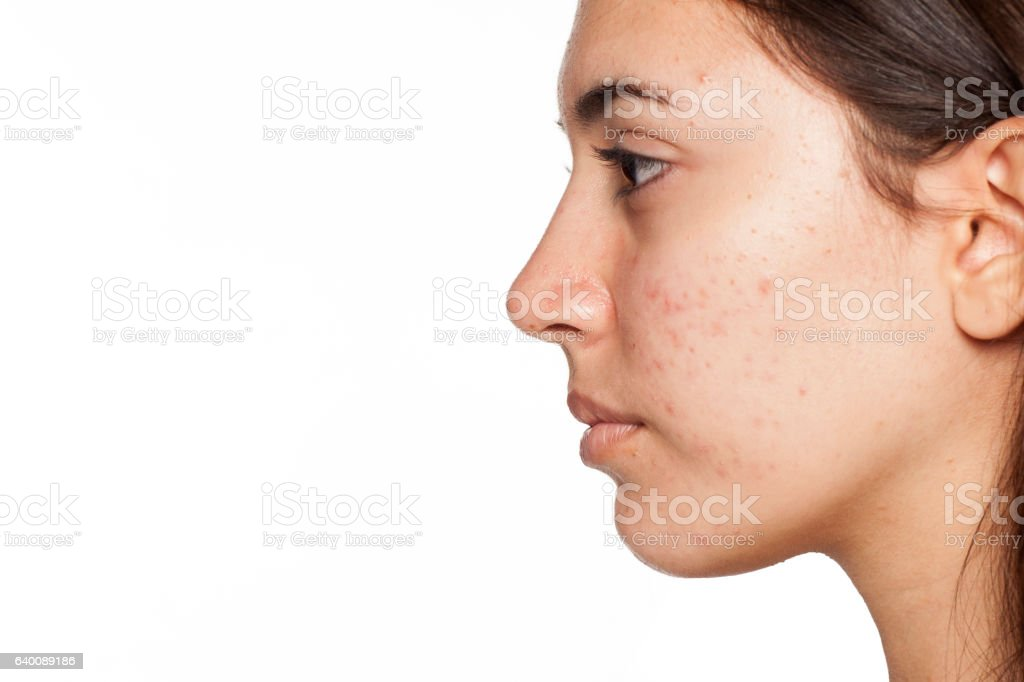 profile of young girl with acne on white background – Foto