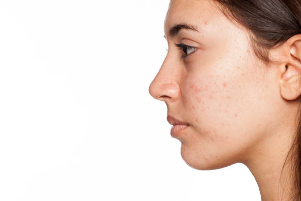 profile of young girl with acne on white background - peau acnéique photos et images de collection