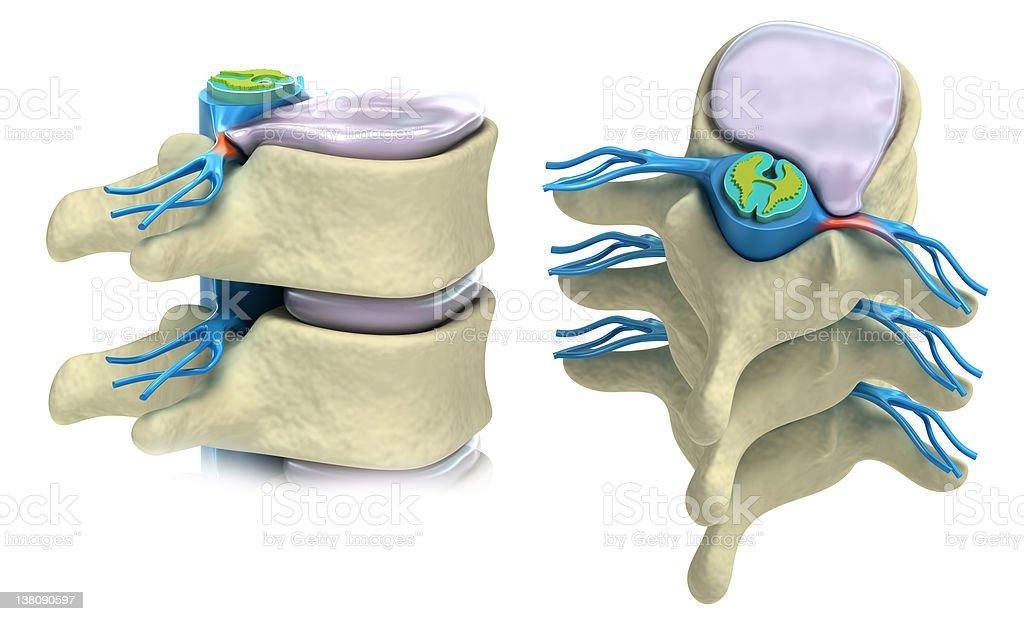 Prolapse of intervertebral disc isolated on white stock photo