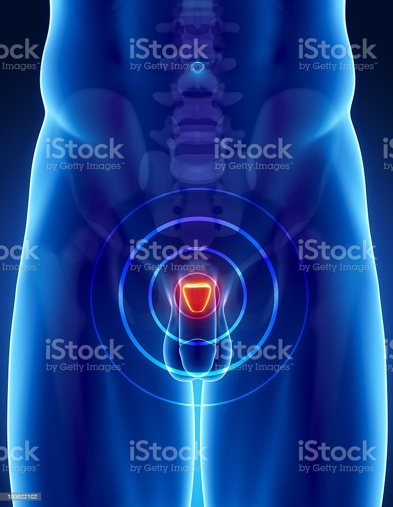 Prostate cancer concept stock photo