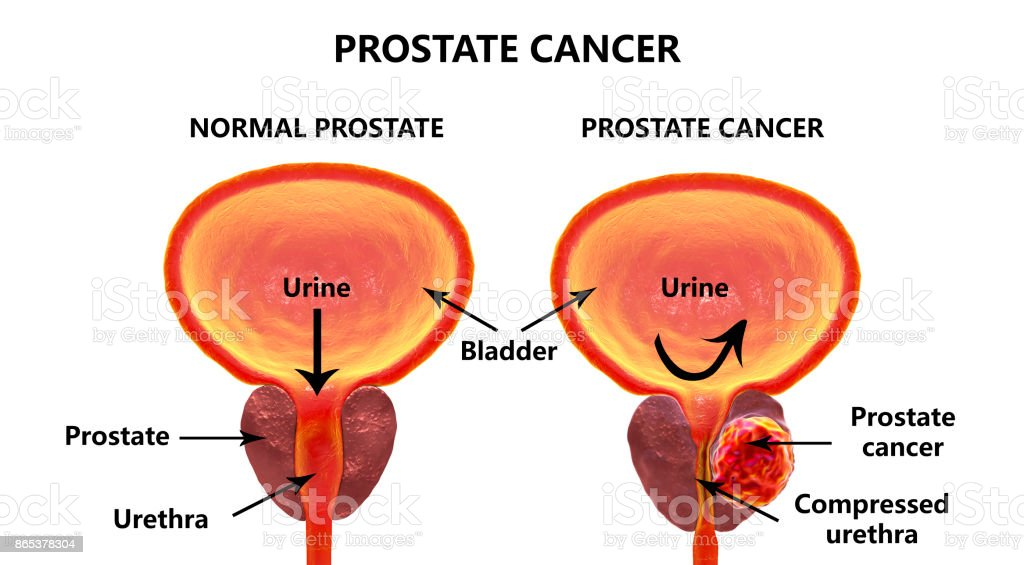 Prostate cancer, illustration stock photo