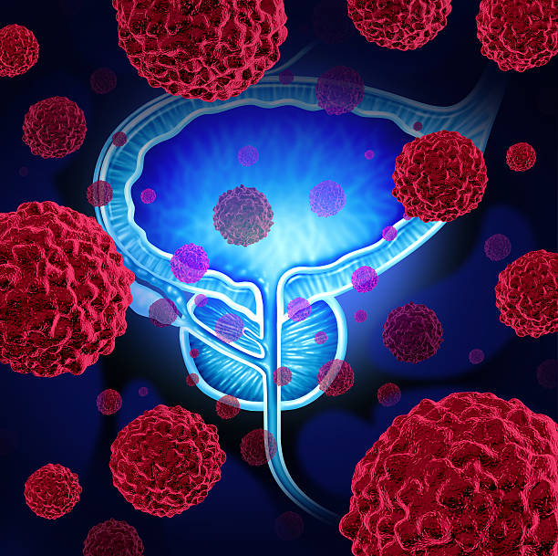 Prostate Cancer Prostate cancer danger medical concept as cancerous cells in a male body attacking the reproductive system as a symbol of human malignant tumor growth diagnosis treatment and risks. prostate gland stock pictures, royalty-free photos & images