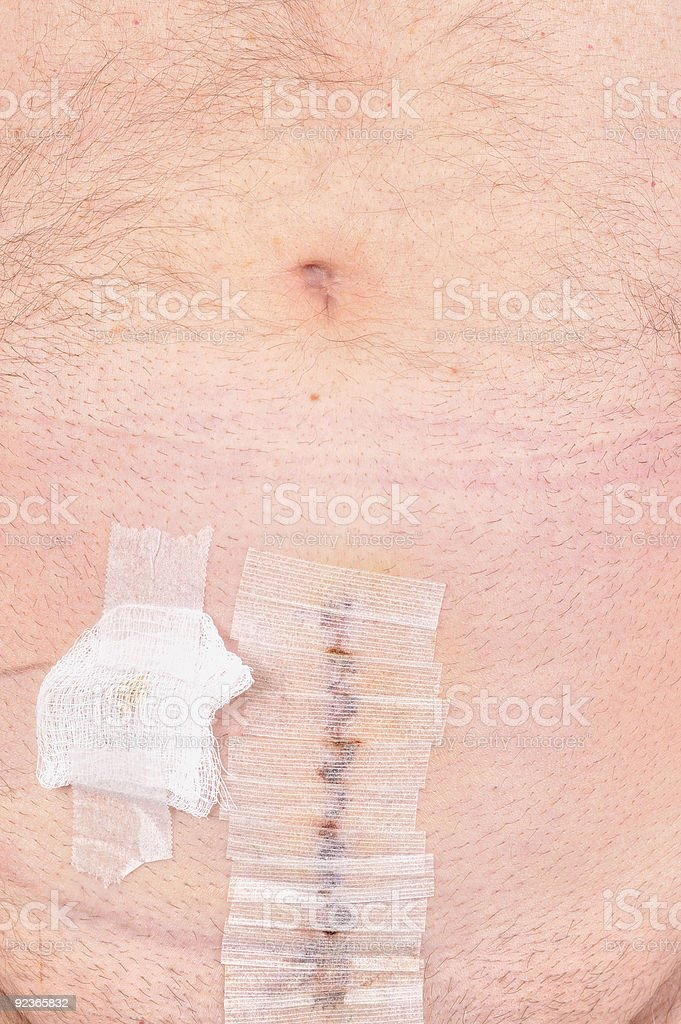 Prostate Cancer Surgery Operation royalty-free stock photo